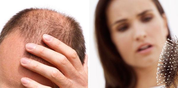 Tratamiento-para-la-caída-del-cabello-alopecia